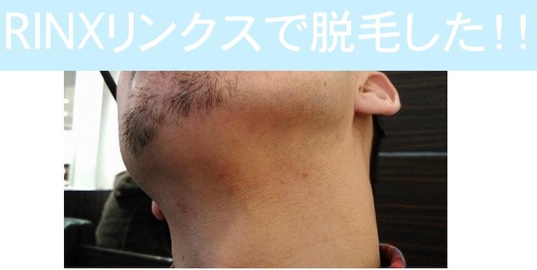 あご下のヒゲ脱毛