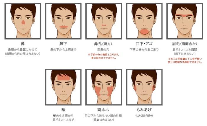 ヒゲ脱毛の部位の分かれ方