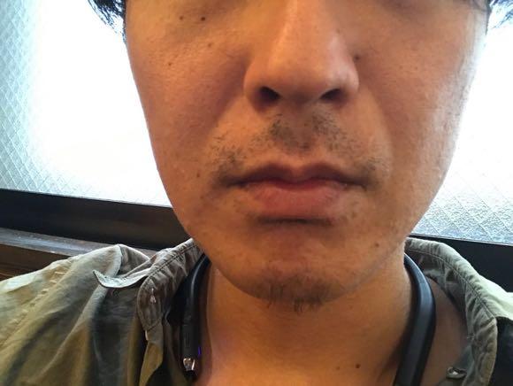 ゴリラクリニック30日経過
