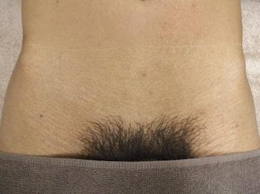 ちん毛脱毛事例2アフター