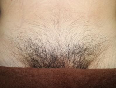 ちん毛脱毛の効果事例ビフォー1