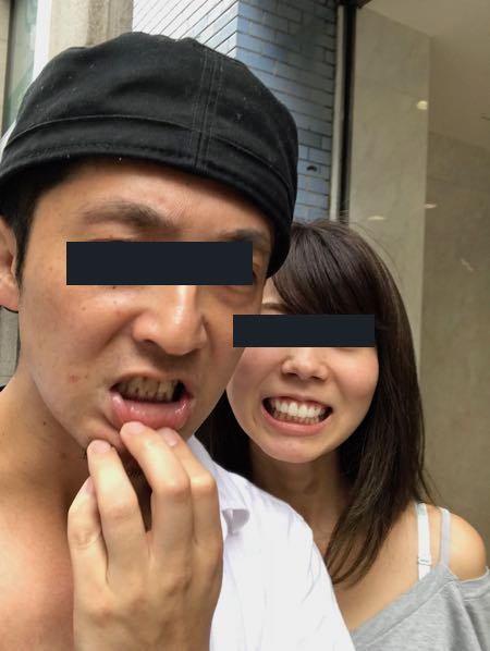 歯のホワイトニング前の画像