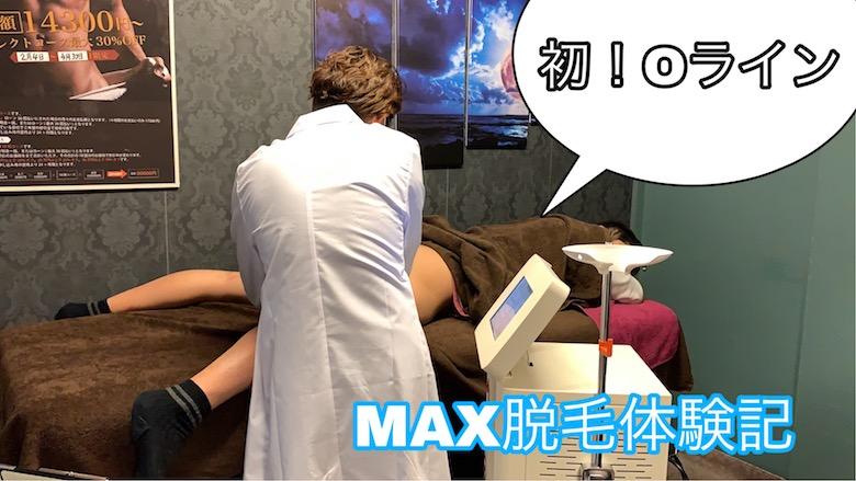 メンズ脱毛MAX体験談!!
